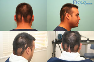 Hair Transplant Repair Of Scarring From Cancer Treatments