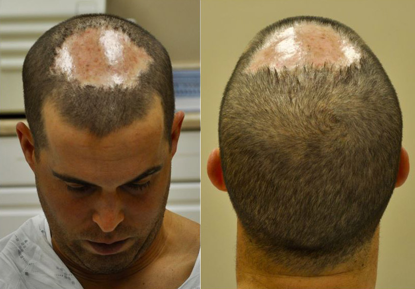 Image result for Fue Hair Transplant